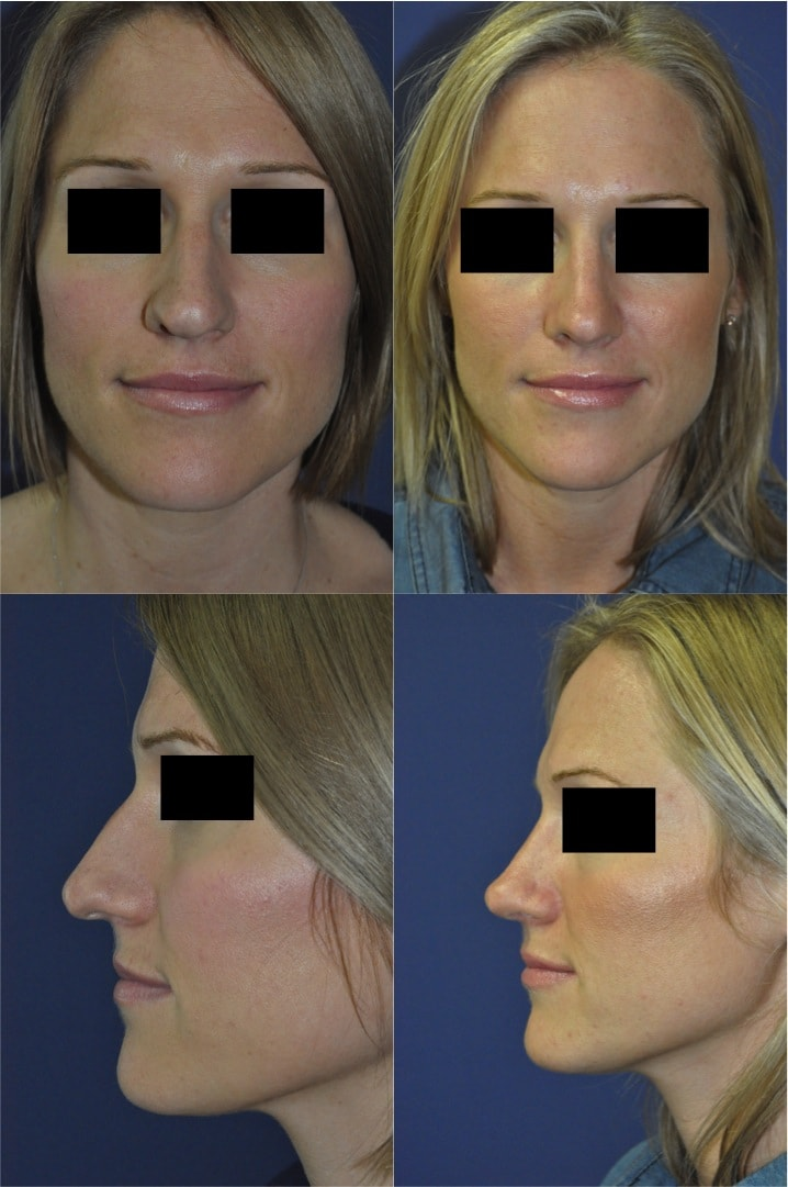 Nose Surgery for Reshaping Kent