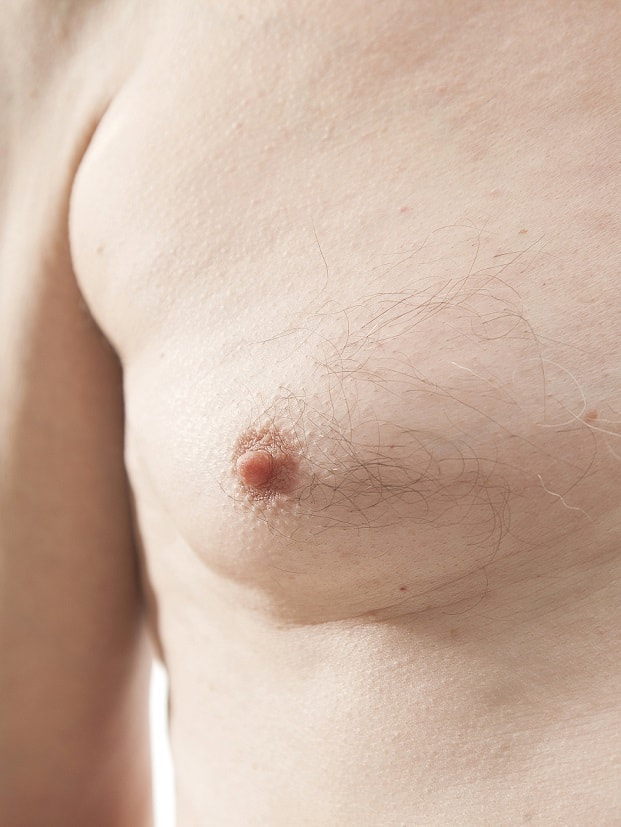 male breast reduction surgery kent