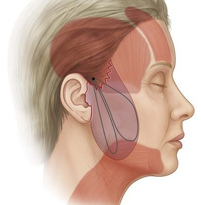 A Personal Experience Of A Local Anaesthetic Facelift