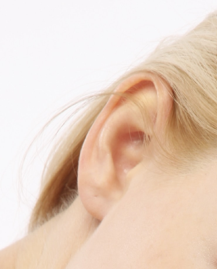 prominent ear correction surgery kent