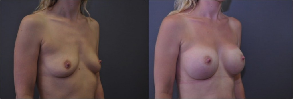 b_a_smooth_breast_implants