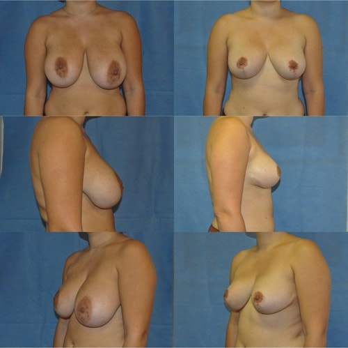 breast reduction surgery tunbridge wells