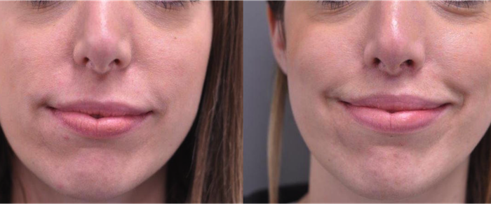 Before And After Upper Lip Lift Marc Pacifico