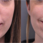 How Do My Patients Discover Lip Lifts?