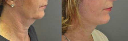 before_and_after_a_facelift_by_marc_pacifico
