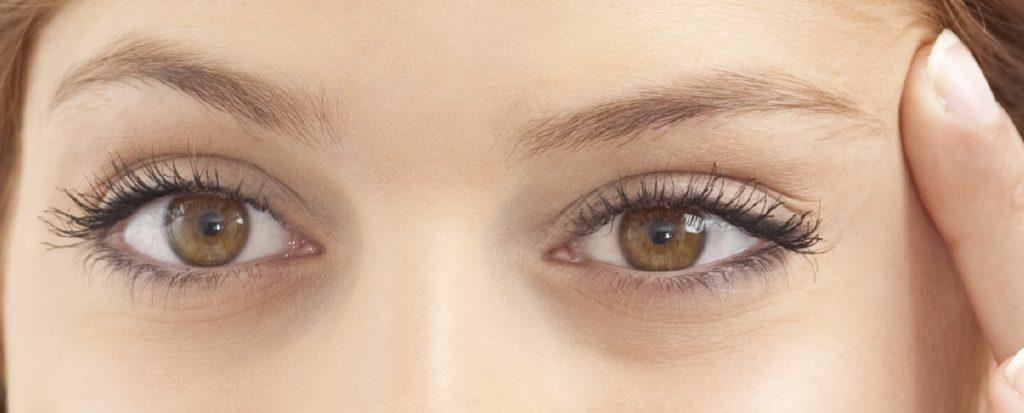 upper eyelid blepharoplasty surgery