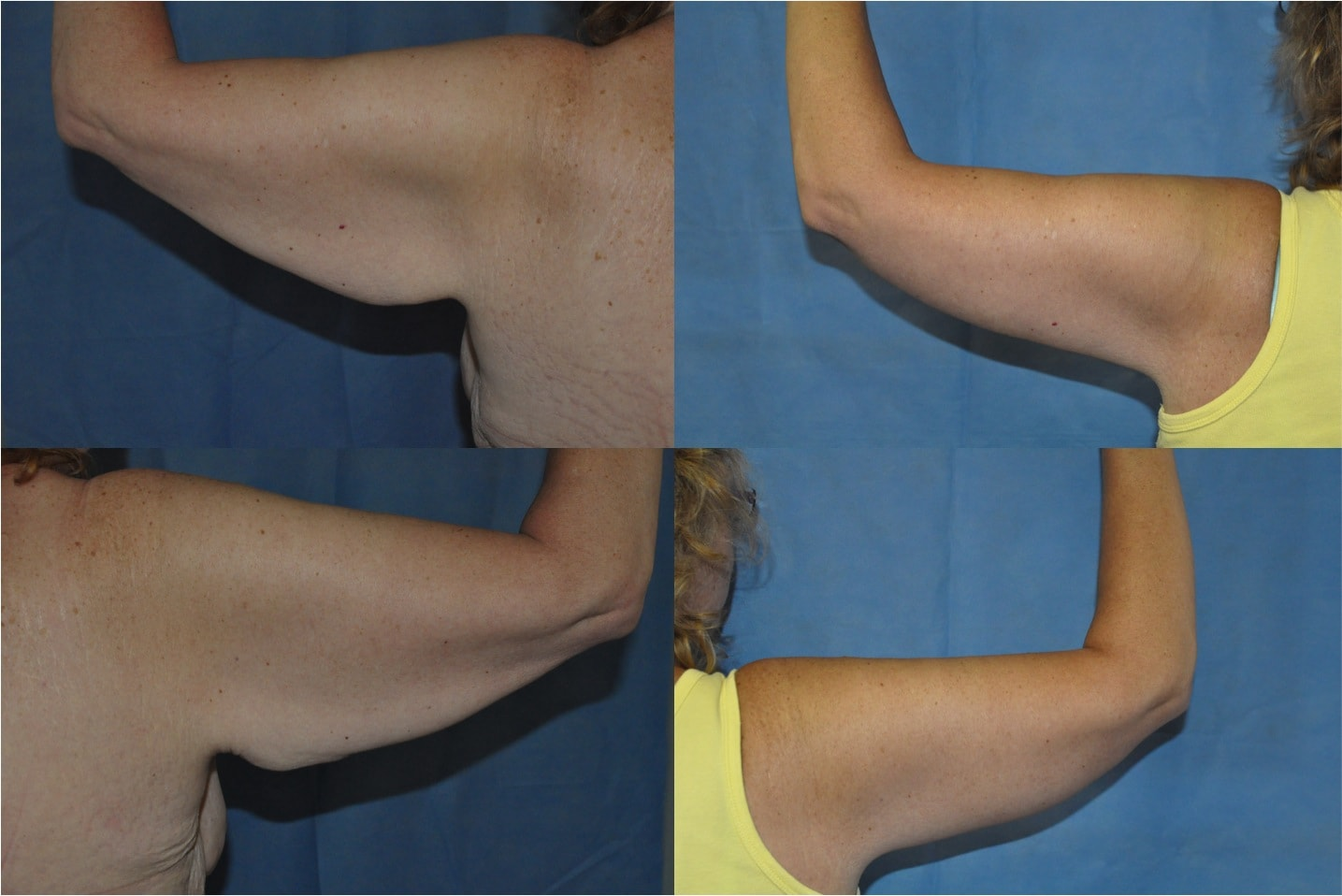 brachioplasty arm lift surgery Tunbridge Wells