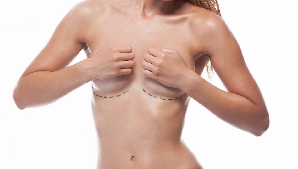 breast augmentation expander kent