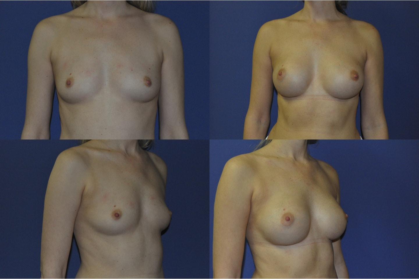 breast_augmentation_1