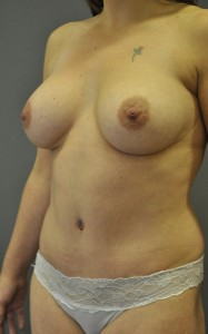 breast_augmentation_inverted_nipple_correction_and_tummy_tuck-after