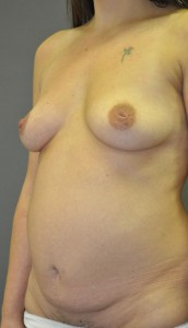 breast_augmentation_inverted_nipple_correction_and_tummy_tuck-before