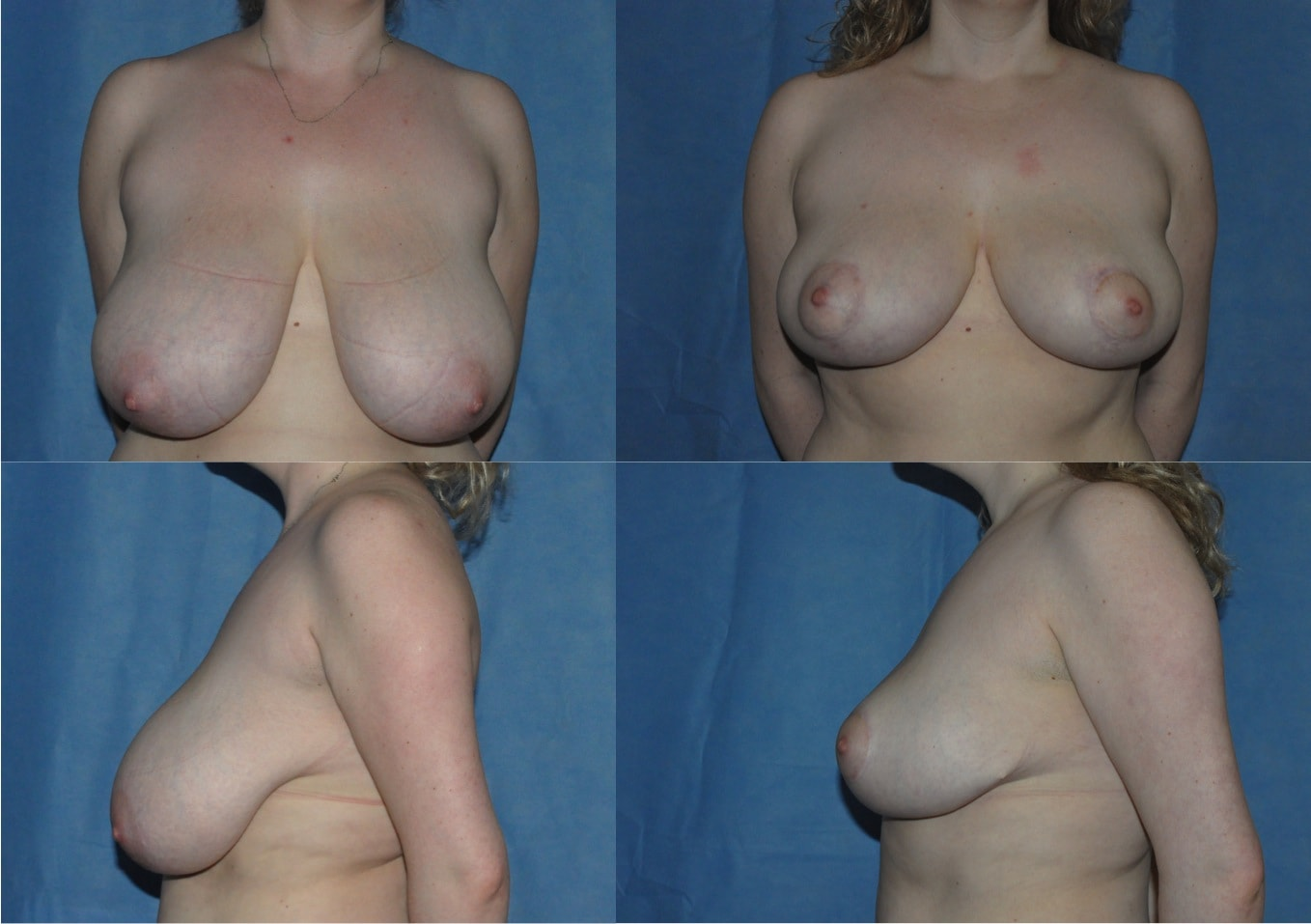 breast reduction surgery and lift