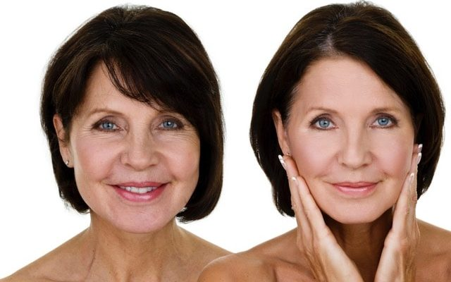 Facial Sculpting – The Art Of Advance Filler