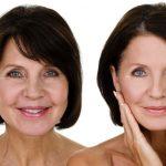 Facial Sculpting – The Art Of Advance Filler