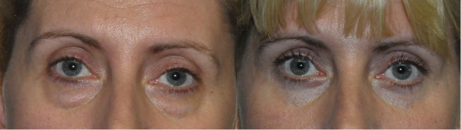 lower blepharoplasty dry eyes kent