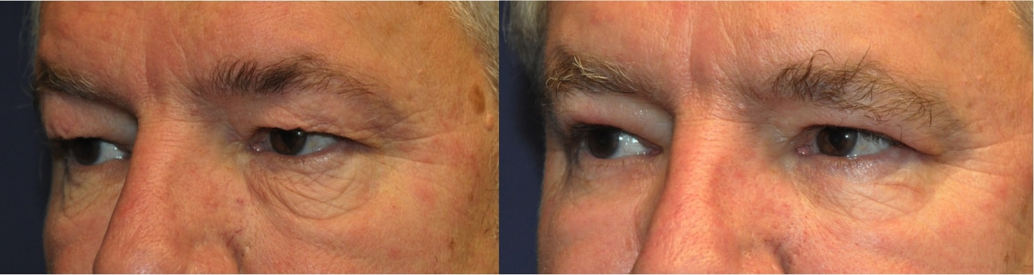 lower blepharoplasty surgery Kent