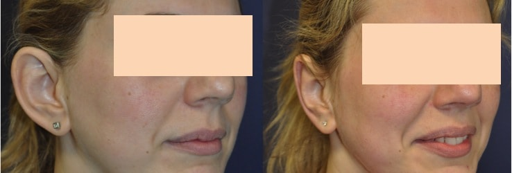 prominent ear correction without surgery kent