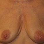 Shaping Breasts After Massive Weight Loss