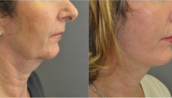 Results Of A Facelift By Marc Pacifico