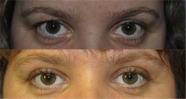cost of upper blepharoplasty