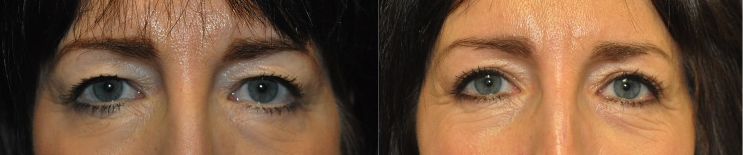 upper blepharoplasty with brow lift