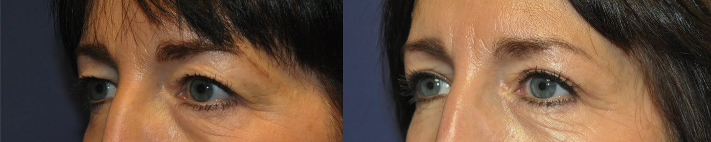 upper eyelid blepharoplasty surgery